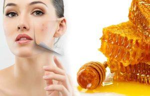 acnes-scar-removal