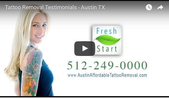 tattoo-removal-Austin