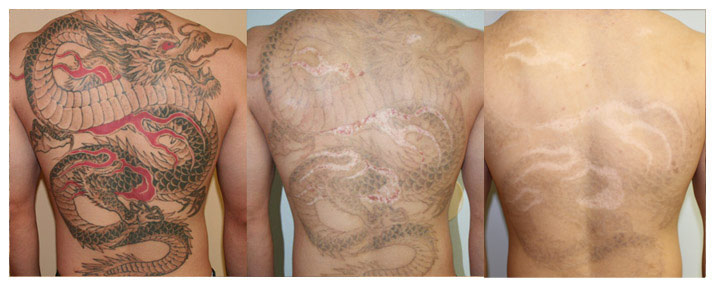 Laser tattoo tattoo removal on men